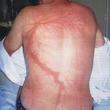 번개 맞아 파열된 혈관 문신(4)